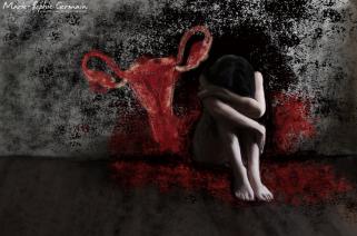 Endometriose depression 2