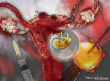 Endometriose IFV 2